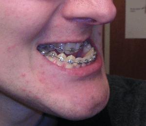 Orthodontie pour corriger menton prognathe