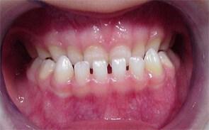 Photo d'une prognathie mandibulaire chez un enfant