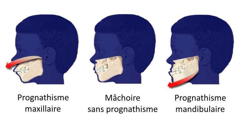 """Schéma d'une mâchoire prognathe, """"normale"""" et rétrognathe"""