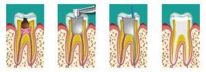 dévitalisation dent