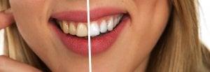 Blanchiment des dents : avant - après