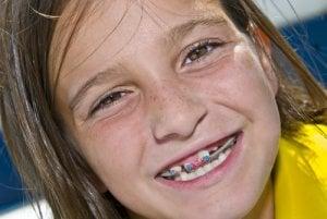 Orthodontie précoe
