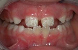 fluorose dents