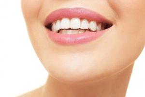 Dents en avant