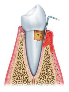 Traitement parodontite