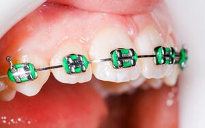 Appareil dentaire de couleur