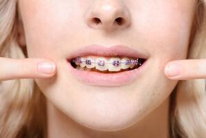 appareil dentaire metal ou céramique