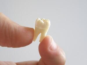 Avulsion dentaire