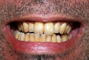 Dents Jaunes Notre Dossier Complet Solutions Et Causes