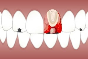 pulpite dentaire