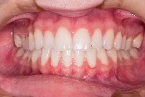 prix blanchiment des dents dentiste remboursement