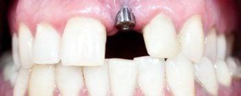 procédure pose d'implants