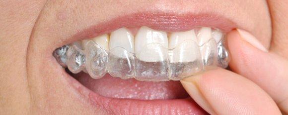 appareil dentaire de nuit