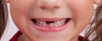 dents enfant