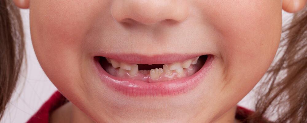 Lévolution De La Dentition Des Enfants De 3 à 12 Ans