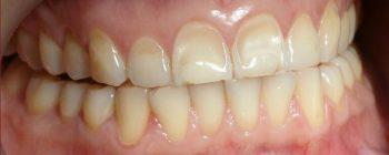 érosion dentaire ados