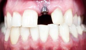 Implant dentaire sans la couronne dans une bouche