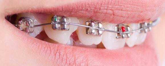Orthodontie Invisible Tout Savoir Sur L Appareil Lingual