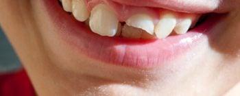dent cassée