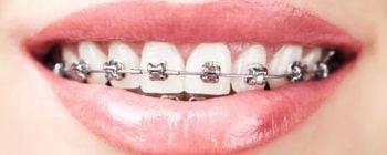 Sourire de femme portant un appareil dentaire