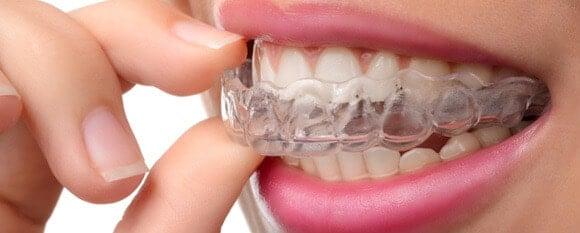L Appareil Dentaire Invisible Prix Et Informations