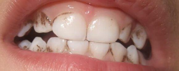 enlever le tartre noir des dents