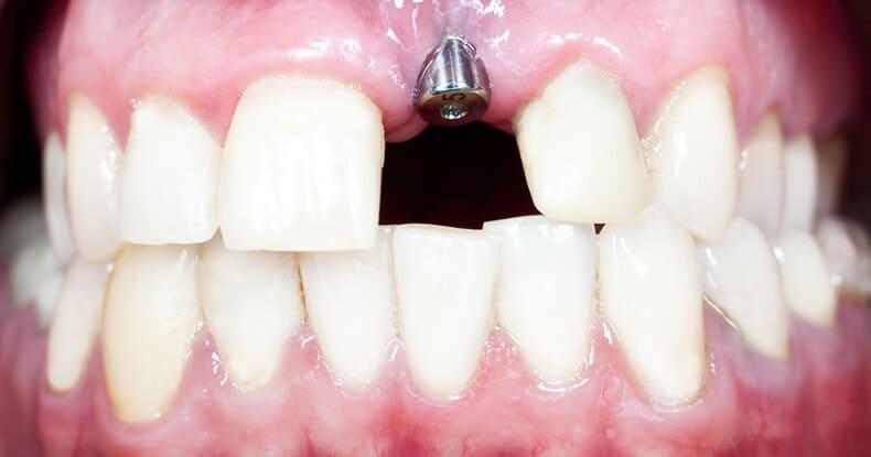 Remboursement implant dentaire