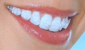 bagues dentaires en céramique