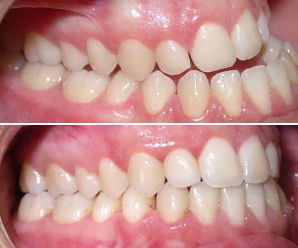 orthodontie adulte avant après