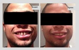 Diastème et facettes dentaires