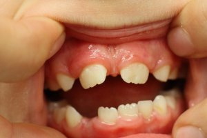 Agénésie dentaire