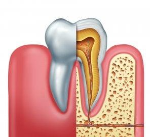schéma apex et nerfs dentaires