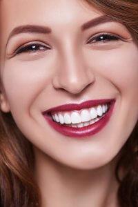 sourire Invisalign