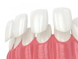 schéma d'une facette dentaire