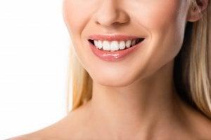 sourire avec facettes dentaires