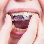 18090Caliquo : une brosse à dents écologique et rechargeable