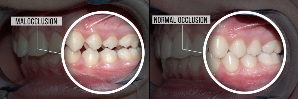 occlusion normale et malocclusion
