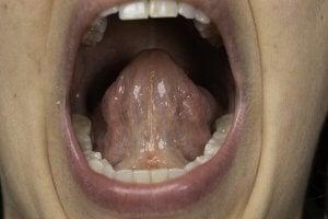 frein de langue