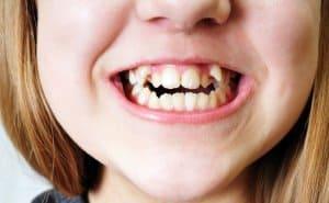 béance dentaire enfant