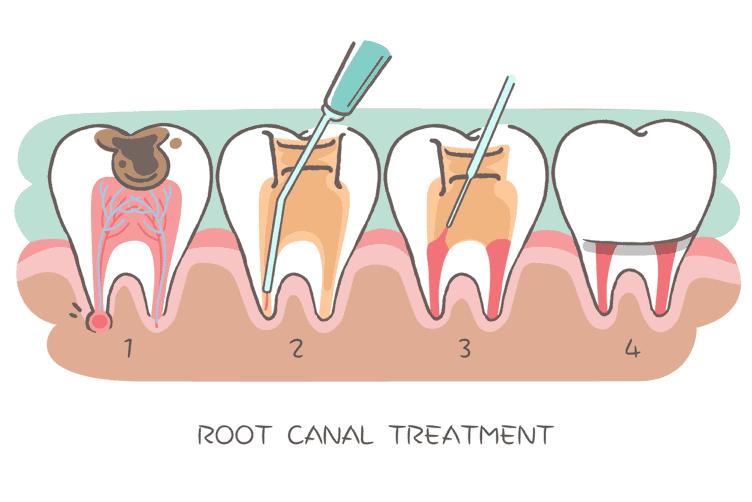 le traitement de la dent nécrosée se fait en plusieurs étapes.
