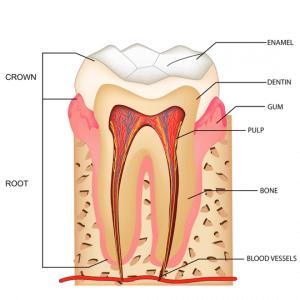 Illustration d'une dent. La nécrose commence lorsque le pulpe est infecté.