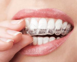 aligneurs dentaires pour corriger les béances