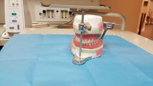 dentier rebasage