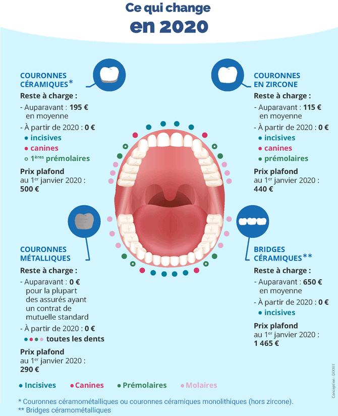 Remboursement 100% santé dentaire