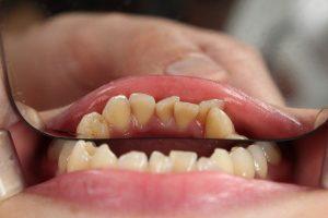 alignement dentaire Invisalign Go