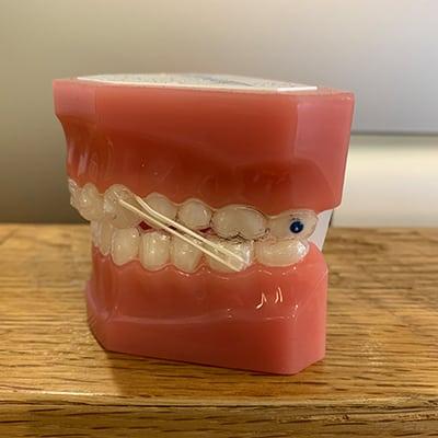 élastiques orthodontiques